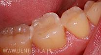 nieszczelne wypełnienie zęba