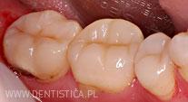 ubytek zęba przed leczeniem