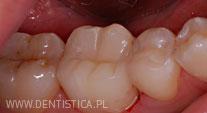 leczenie zęba