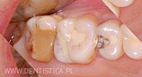 odbudowa zęba trzonowego